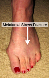 metatarsal-stress